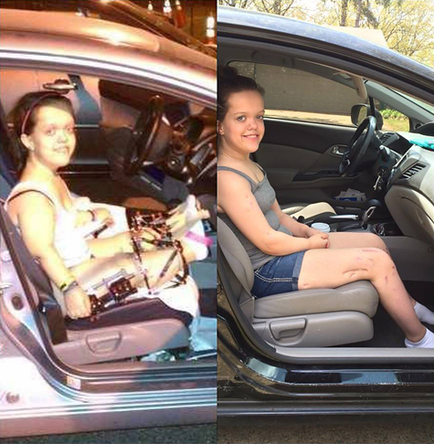 Two side-by-side pictures of Chandler in the passenger seat of a car; one showing her wearing external fixators on her legs at the start of treatment where her legs do not extend far beyond the car seat, before treatment, and one showing her after treatment where her legs not only extend beyond the car seat, but her feet now reach the car floor.