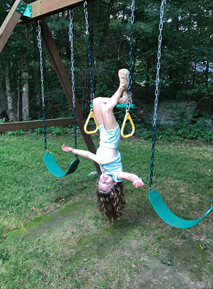 Charlotte hanging upside down from her knees from a bar on a playground despite a 7 cm limb length difference