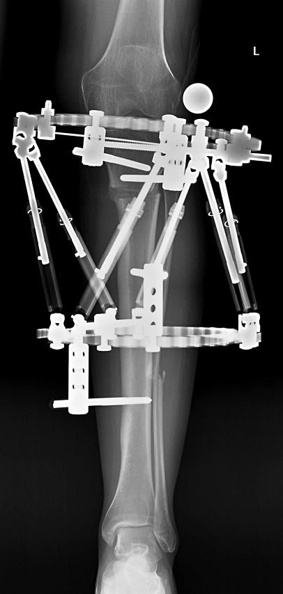 X-ray showing the Taylor Spatial Frame applied to leg