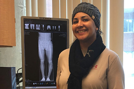 Damaris with straight legs after treatment by X-ray of bowed leg before treatment