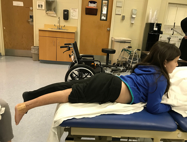 Gracie lying on her stomach on a physical therapy table at the Rubin Institute for Advanced Orthopedics Rehabilitation Department after her leg cast was removed