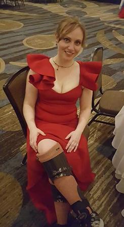 Lisa in a formal red dress wearing her brace