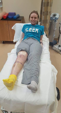 Lisa with her leg marked up for surgery