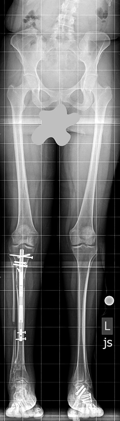 X-ray of Lisa's legs after Precice lengthening treatment showing legs of equal length