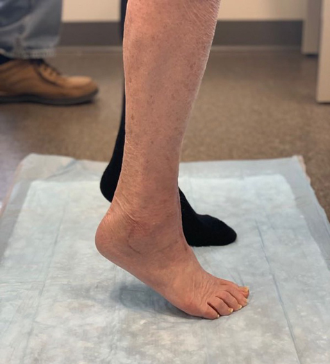 Sharon's foot after surgery