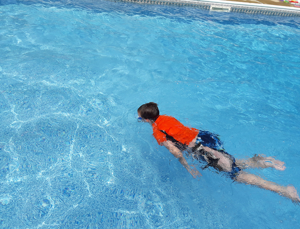 Wyatt swimming in a pool with his external fixator bar showing
