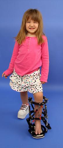Emma as a young girl wearing an external fixator