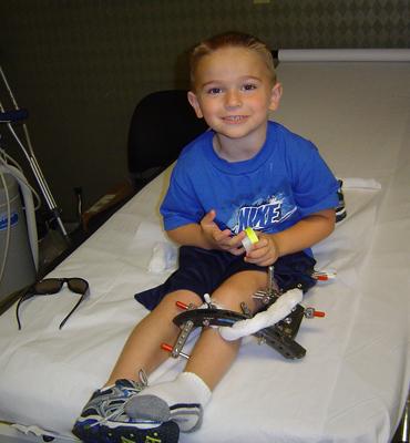 Matt on a hospital bed with an external fixator on one leg