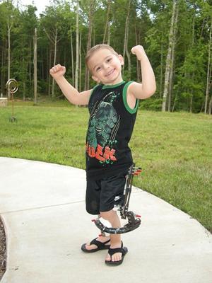 Matt wearing an external fixator on one leg showing his arm muscles when he was 4