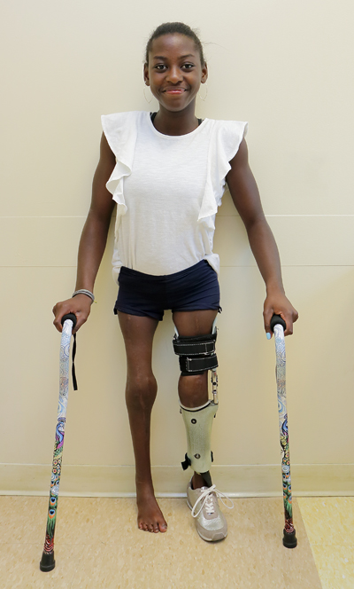 Melissa as a teenager standing with one leg brace and 2 canes