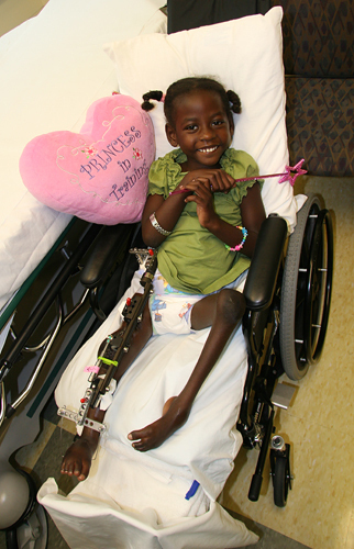 Melissa as a young child in a wheelchair with an external fixator on one leg