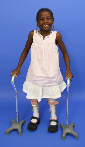 Melissa standing with leg braces and canes
