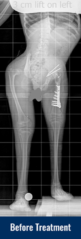 Alena's X-ray before her most recent treatment