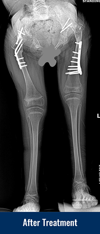 Alena's X-ray after her most recent treament showing much improved bone alignment