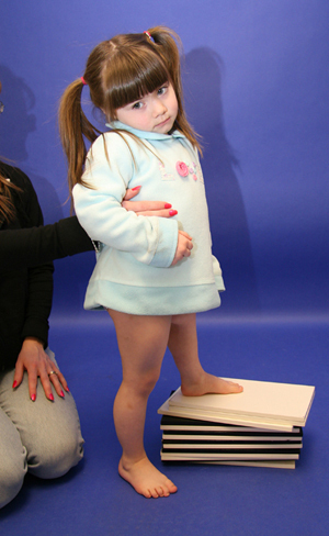 Brooklynn at age 4 before treatment with a very significant leg length discrepancy