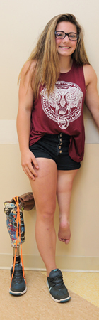 Brooklynn as a teenager standing showing her leg after rotationplasty next to her prosthetic
