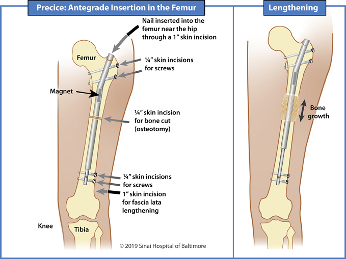 Illustrations showing antegrade insertion of a Precice nail into the femur for limb lengthening and deformity correction