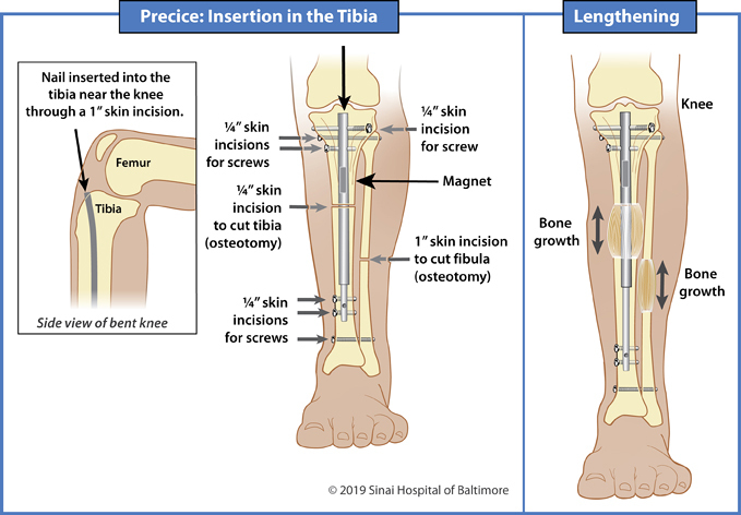 Illustrations showing insertion of a Precice nail into the tibia for limb lengthening and deformity correction