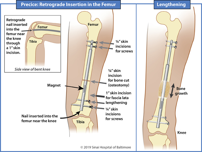 Illustrations showing retrograde insertion of a Precice nail into the femur for limb lengthening and deformity correction