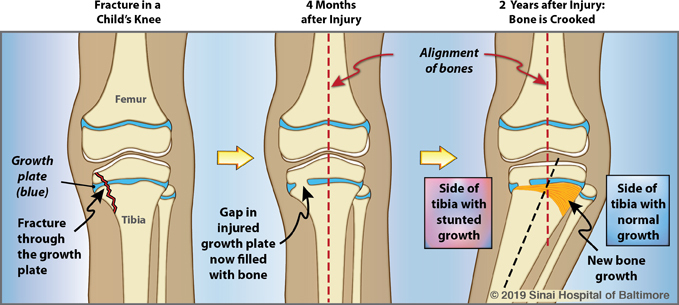 Illustrations of the immature bones around the knee, showing a medial proximal tibial growth plate fracture, and a malaligned knee after two years if left untreated.