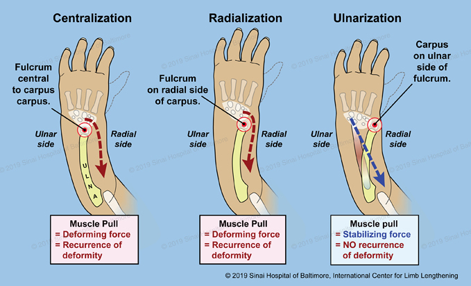 An illustration with three figures showing the differences between the centralization, radialization, and ulnarization techniques as explained below