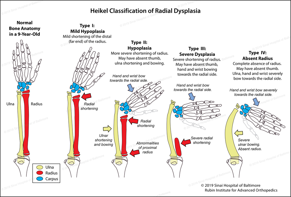 An illustration showing normal bone anatomy in a 9-year-old's hand and arm compared to 4 different types of radial club hand ranging from Type 1: mild hypoplasia to Type 4: a completely absent radius.
