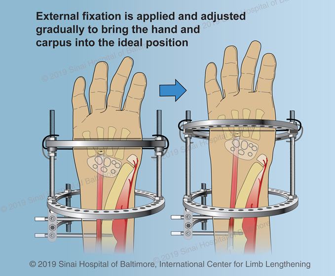 An illustration showing how the external fixator is applied and how it is adjusted gradually to bring the hand and carpus into the ideal position as described in step 8 of the ulnarization procedure described above.