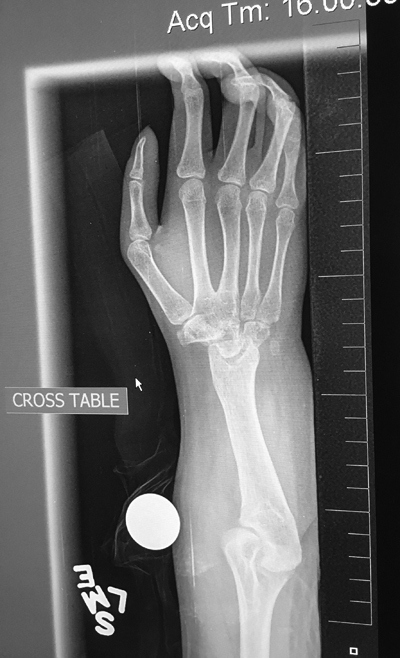 X-ray showing a 19-year-old female who had a centralization procedure at the age of 18 months. The wrist is fused and the ulna is only 8.5 cm (3 1/2 in) in length.