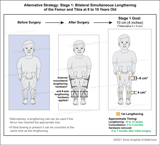 Achondroplasia: Alternative Strategy 1: 1st Stage: Bilateral simultaneous lengthening of the femur and tibia at around 8 to 10 years old to include femoral external monolateral lengthening hardware and tibial six-axis external lengthening hardware