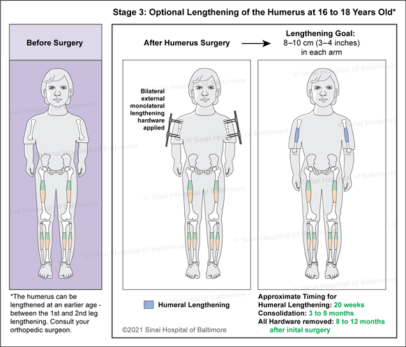 Achondroplasia: Surgical Treatment Plan for Optional Lengthening of the Humerus to include bilateral external monolateral lengthening hardware applied.