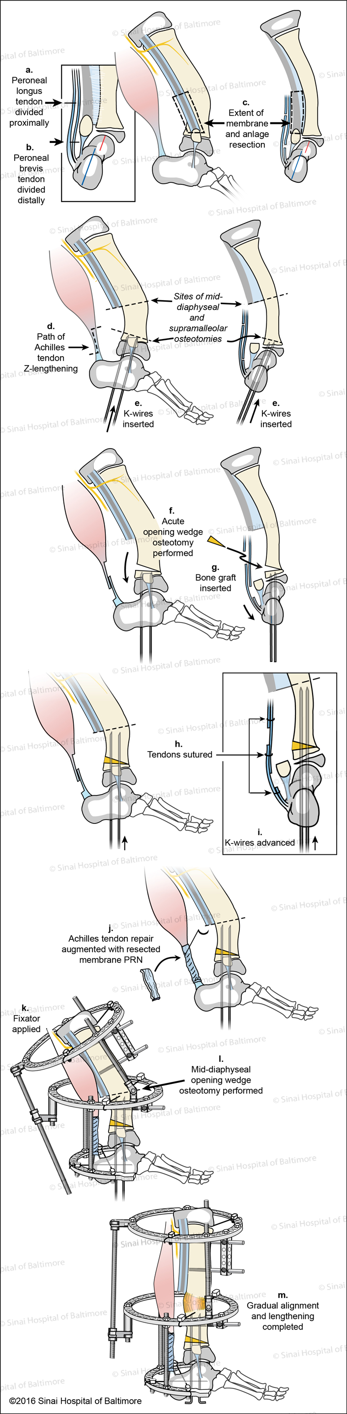 Super-ankle Surgical Technique for Supramalleolar Type Fibular Hemimelia (Paley Type 3A - ankle type ) Fig. A, AP View, Peroneal longus tendon is divided proximally. B, AP View, Peroneal brevis tendon is divided distally. C, Lateral and AP views, The extent of the membrane and anlage resection is identified; D, E, AP and Lateral views, Path of Achilles tendon Z-lengthening, sites of mid-diaphyseal and supramalleolar osteotomies are identified, k-wires are inserted; F, Acute opening wedge osteotomy performed; G, Bone graft is inserted; H, Tendons are sutured; I, K-wires are advanced; J, Achilles tendon repair is augmented with resected membrane as needed; K, Fixator is applied; L, Mid-diaphyseal opening wedge osteotomy is performed; M, Gradual alignment and lengthening is completed.