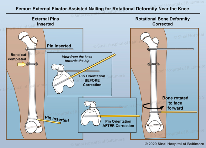 2-paneled color illustration depicting the process of correcting a rotational deformity near the knee of the femur. First external pins are placed to control the rotation of the bones; the femoral osetotomy is completed; detail shows the angle of the pins and bones from a