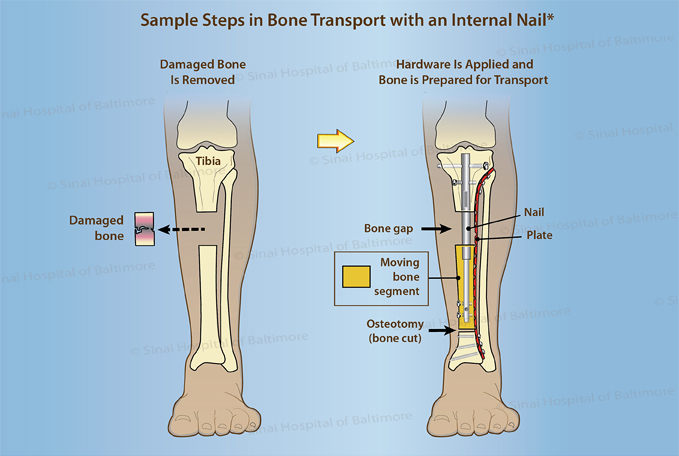 Illustration of a tibia showing the first two steps in bone transport with an internal nail - removing the damaged bone and then applying the hardware to prepare the bone for transport