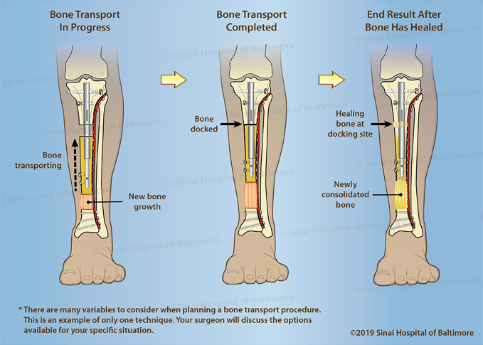 Illustration of a tibia showing the last three steps in bone transport with an internal nail - the bone transport in progress, the completed bone transport, and the end result after the bone has healed