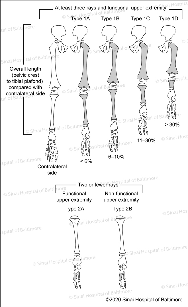 Birch Classification of Fibular Hemimelia: Type IA, Type IB, Type IC, Type ID; Two of fewer rays: Functional upper extremity Type 2A, non-functional upper extremity Type 2B;