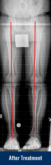 X-ray showing patient's straight leg after treatment for Blount disease with lines indicating proper limb alignment