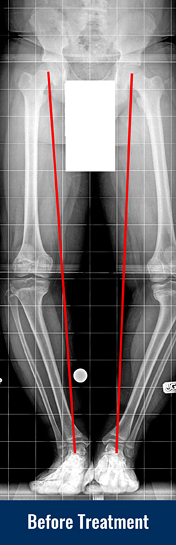 X-ray showing patient's bowed leg from Blount disease before treatment with lines indicating poor limb alignment