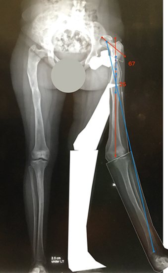 X-ray showing Bone Ninja planning lines for surgery to correct the bone deformity caused by fibrous dysplasia