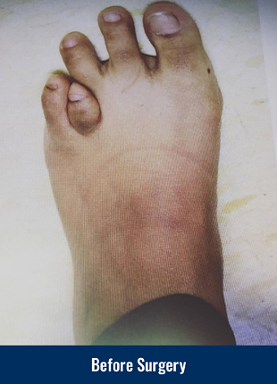A patient's foot before acute lengthening surgery for brachymetatarsia