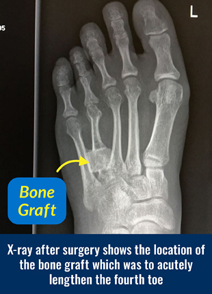 X-ray after surgery for brachymetatarsia showing the location of the bone graft which was to acutely lengthen the fourth toe