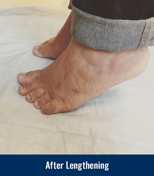 A patient's feet after gradual lengthening for brachymetatarsia
