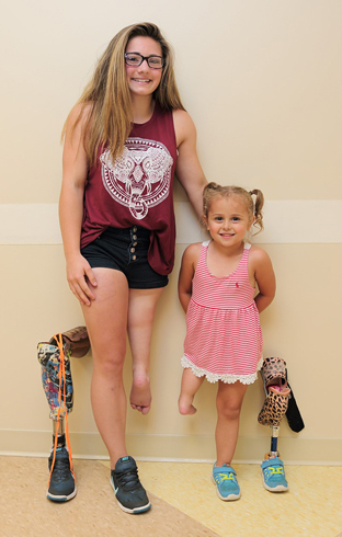 Brooklynn and Danica, two patients who have undergone the rotationplasty procedure, standing next to their prostheses.