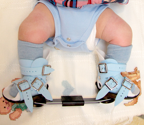 A baby with clubfoot in the boots and bar stage of the Ponseti Method