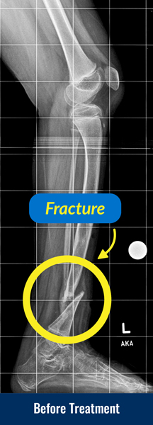 X-ray of a tibia before treatment for congenital pseudarthrosis of the tibia