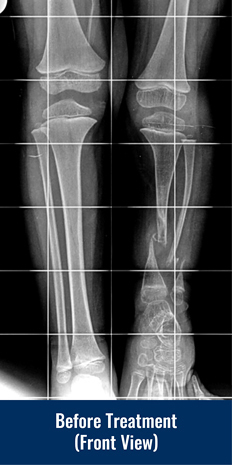 Front view X-ray of a patient's legs before treatment for congenital pseudarthrosis of the tibia