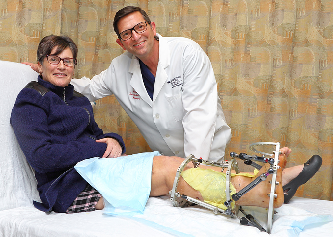 Dr. Christopher Bibbo smiling with a happy patient who has an external fixator on her leg at the International Center for Limb Lengthening