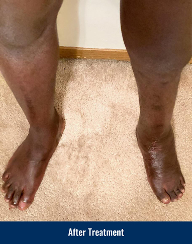 A patient's legs after treatment for a foot and ankle deformity on his left leg