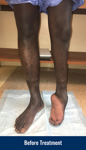 A patient's legs, showing his left leg that has a foot and ankle deformity
