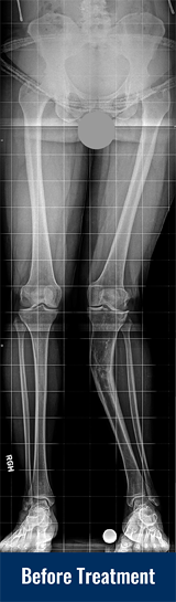 An X-ray of Georgina's legs showing post-traumatic genu valgum of the left tibia