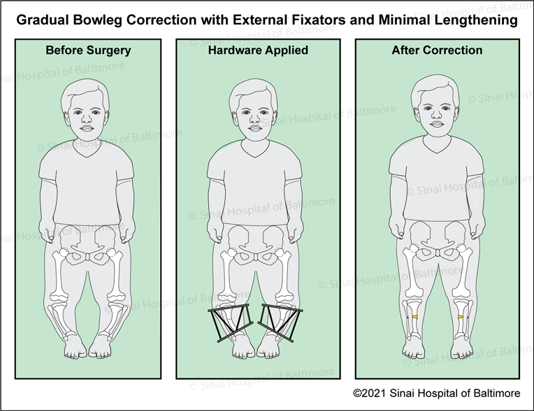 Bowed (Tibia Varus) Correction for Children with Achondroplasia Under the age of 8 to 10 Years Old Without Extensive Lengthening: Images showing anatomy before surgery, after external six-axis correction hardware is applied, and after correction with minor lengthening and hardware removed.